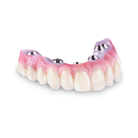 Screw-Retained Crown